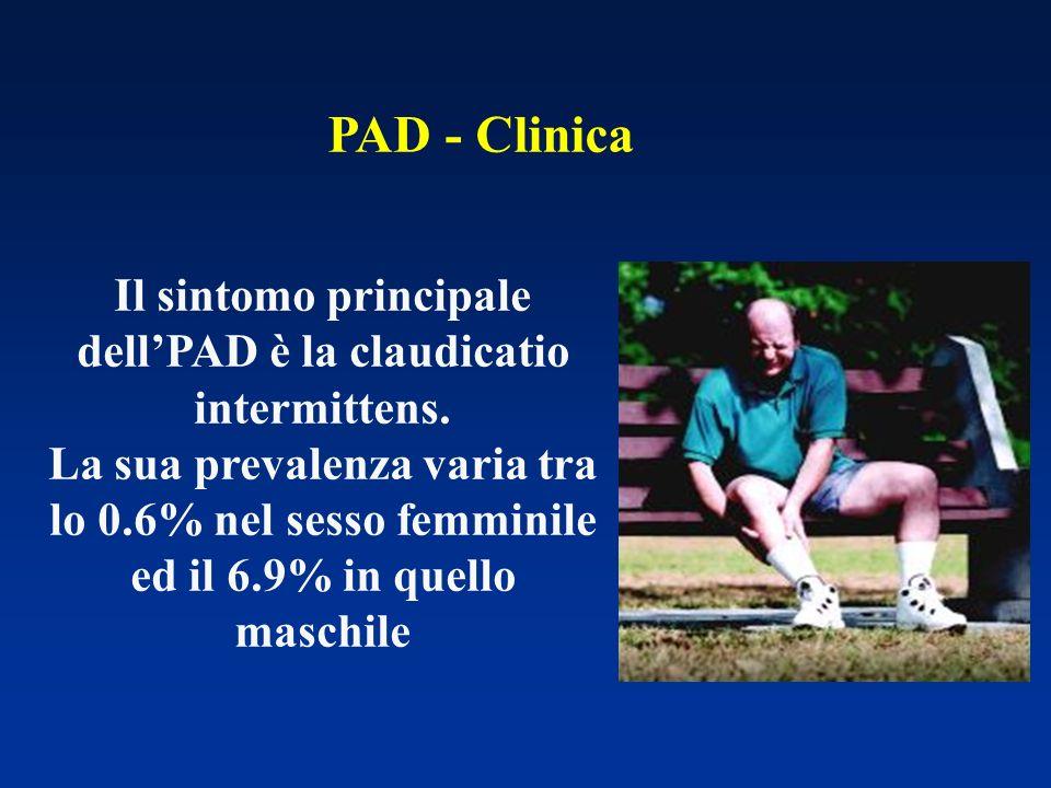 Il sintomo principale dellPAD è la claudicatio intermittens. La sua prevalenza varia tra lo 0.6% nel sesso femminile ed il 6.9% in quello maschile PAD