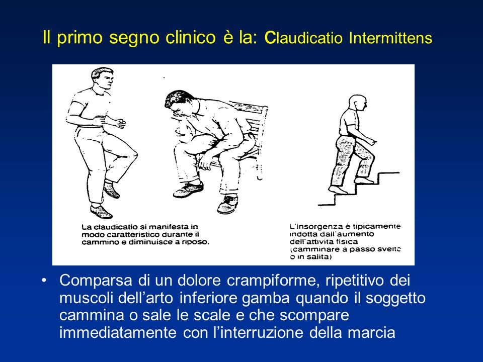 Il primo segno clinico è la: c laudicatio Intermittens Comparsa di un dolore crampiforme, ripetitivo dei muscoli dellarto inferiore gamba quando il soggetto cammina o sale le scale e che scompare immediatamente con linterruzione della marcia