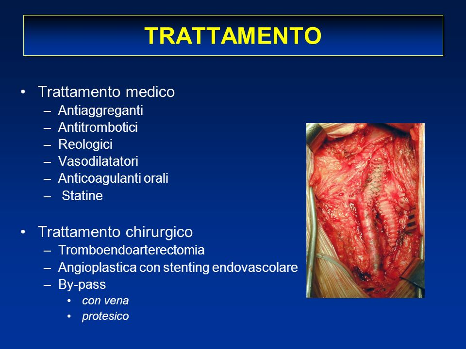TRATTAMENTO Trattamento medico –Antiaggreganti –Antitrombotici –Reologici –Vasodilatatori –Anticoagulanti orali – Statine Trattamento chirurgico –Trom