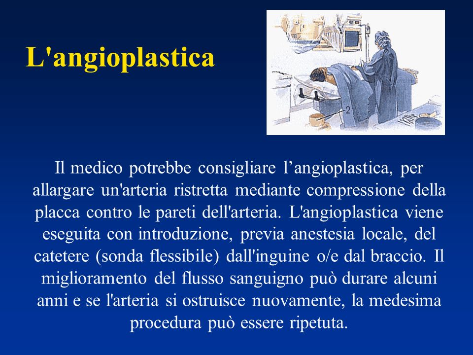 L angioplastica Il medico potrebbe consigliare langioplastica, per allargare un arteria ristretta mediante compressione della placca contro le pareti dell arteria.