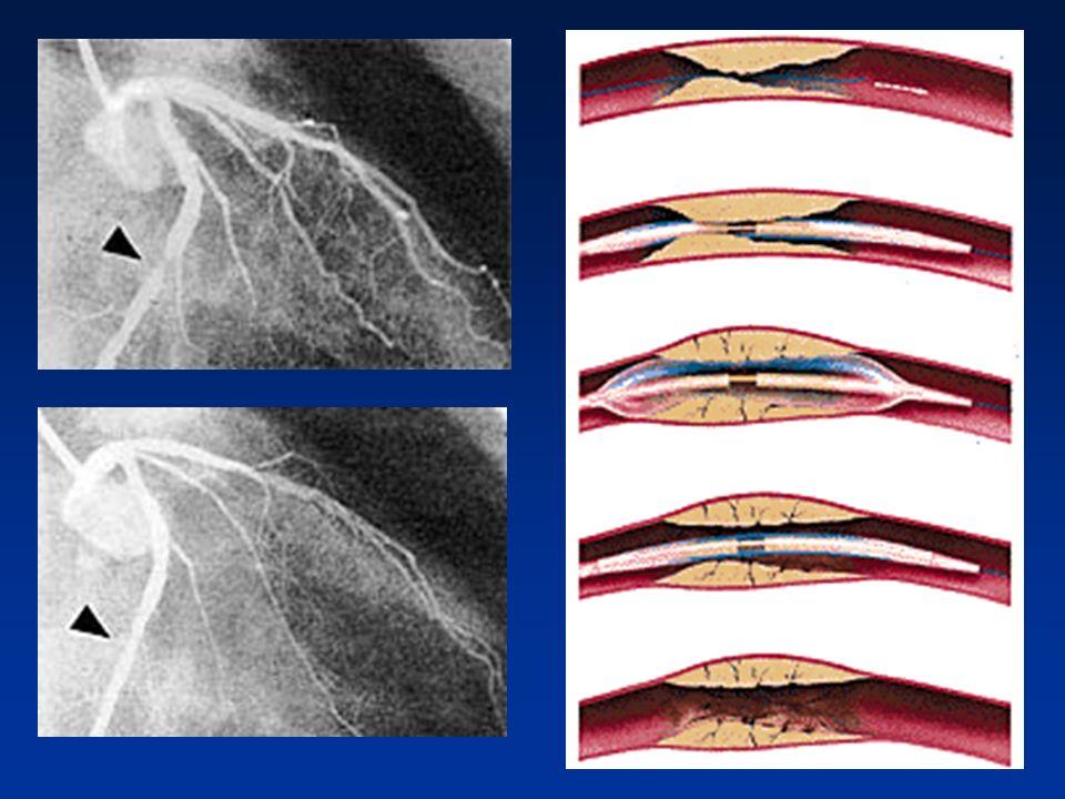 La chirurgia con by-pass Se l ostruzione non può essere curata con l angioplastica, il medico potrebbe consigliare un by-pass chirurgico.