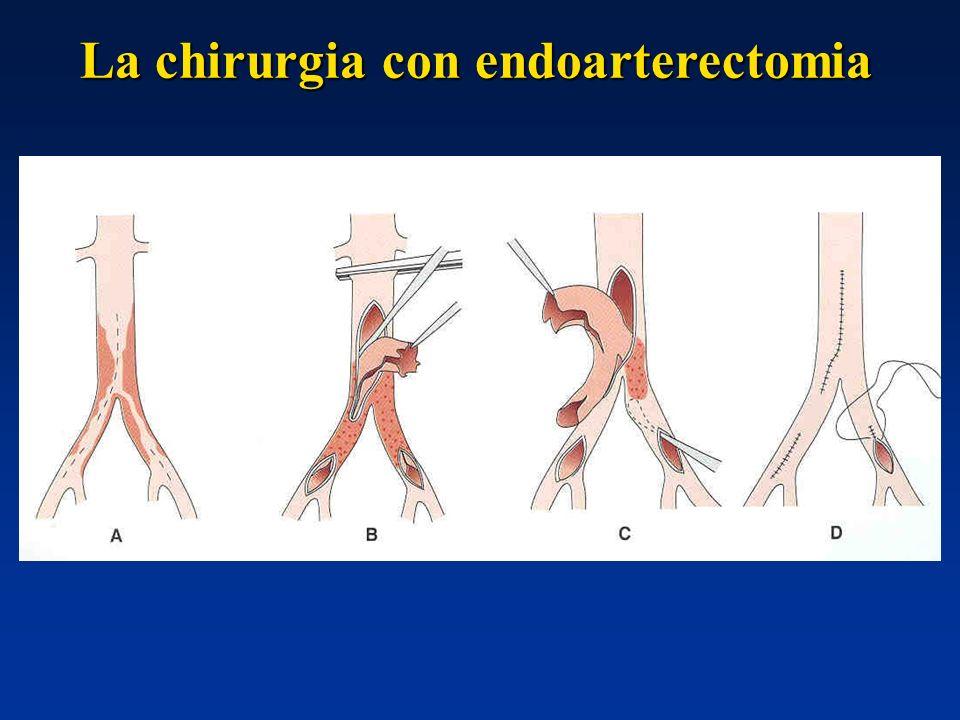 La chirurgia con endoarterectomia