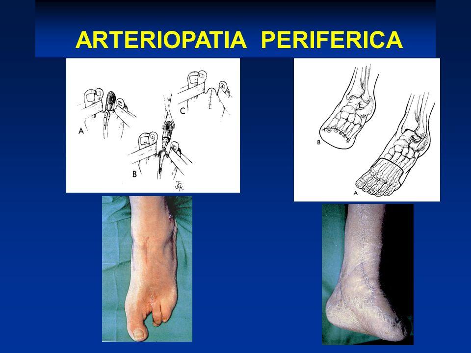 AMPUTAZIONI ARTERIOPATIA PERIFERICA