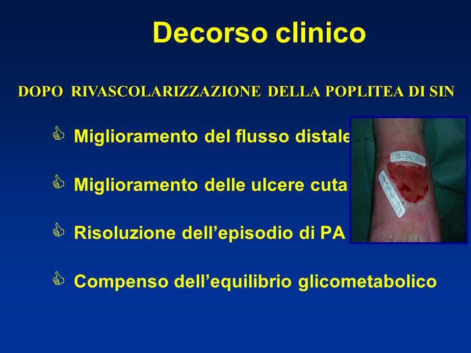 Decorso clinico Miglioramento del flusso distale Miglioramento delle ulcere cutanee Risoluzione dellepisodio di PA Compenso dellequilibrio glicometabolico DOPO RIVASCOLARIZZAZIONE DELLA POPLITEA DI SIN