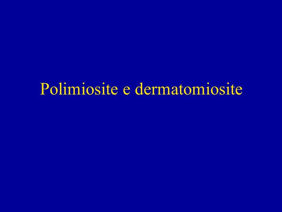 Polimiosite e dermatomiosite