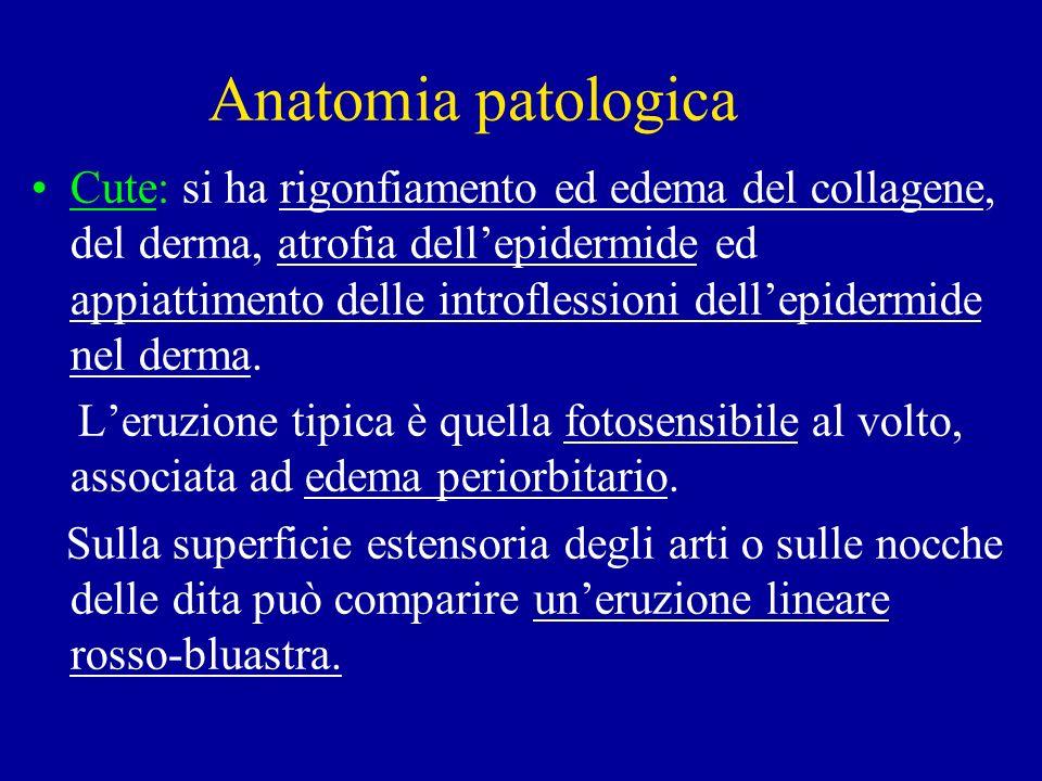Anatomia patologica Cute: si ha rigonfiamento ed edema del collagene, del derma, atrofia dellepidermide ed appiattimento delle introflessioni dellepid