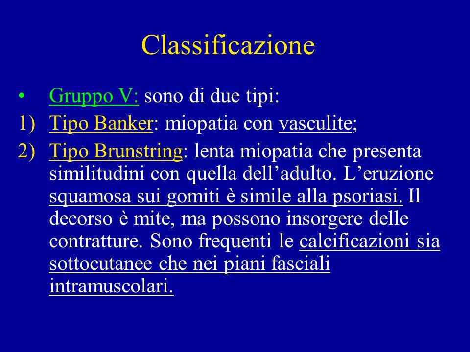 Classificazione Gruppo V: sono di due tipi: 1)Tipo Banker: miopatia con vasculite; 2)Tipo Brunstring: lenta miopatia che presenta similitudini con que