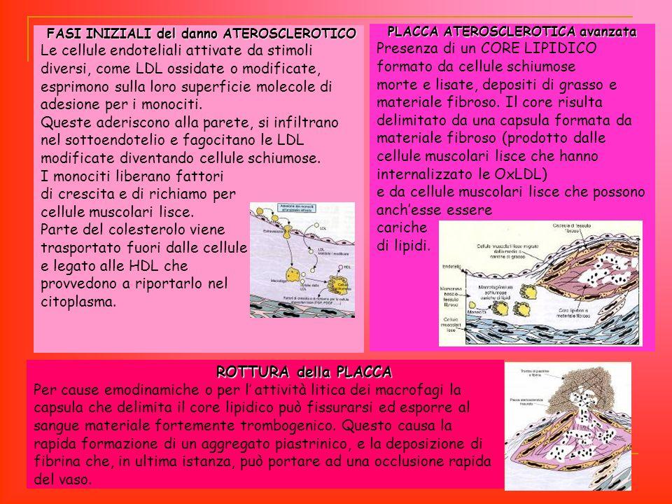 ROTTURA della PLACCA ROTTURA della PLACCA Per cause emodinamiche o per l attività litica dei macrofagi la capsula che delimita il core lipidico può fi