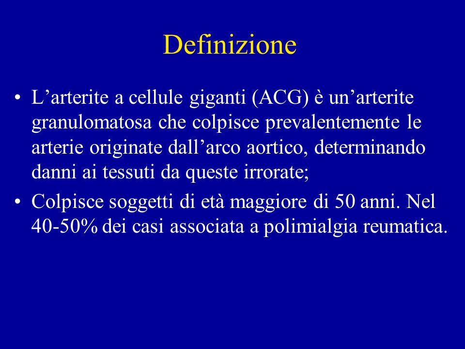 Definizione Larterite a cellule giganti (ACG) è unarterite granulomatosa che colpisce prevalentemente le arterie originate dallarco aortico, determina