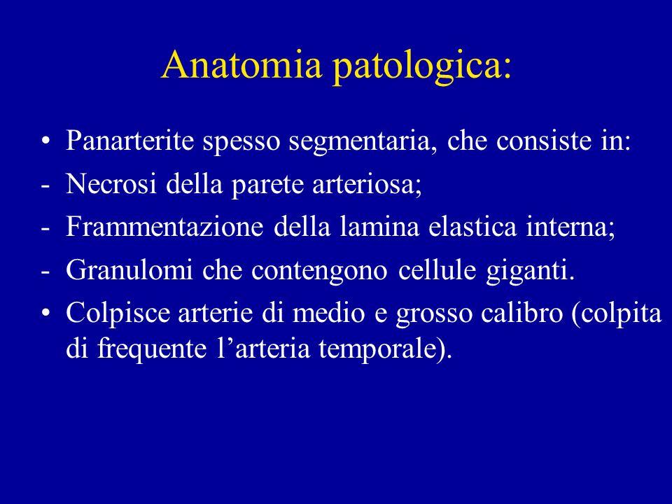 Anatomia patologica: Panarterite spesso segmentaria, che consiste in: -Necrosi della parete arteriosa; -Frammentazione della lamina elastica interna;