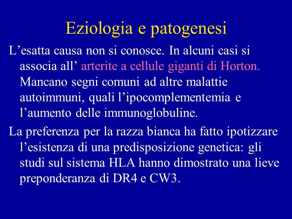 Eziologia e patogenesi Lesatta causa non si conosce. In alcuni casi si associa all arterite a cellule giganti di Horton. Mancano segni comuni ad altre