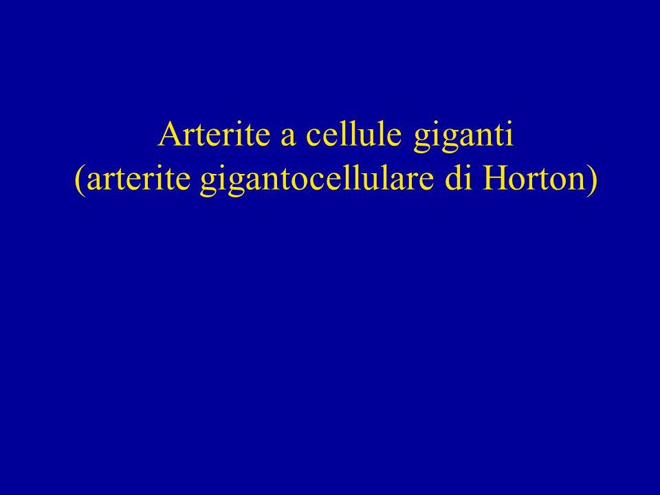 Definizione Larterite a cellule giganti (ACG) è unarterite granulomatosa che colpisce prevalentemente le arterie originate dallarco aortico, determinando danni ai tessuti da queste irrorate; Colpisce soggetti di età maggiore di 50 anni.