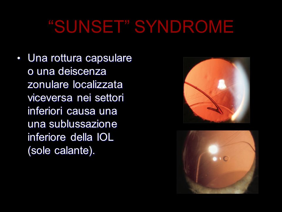 SUNSET SYNDROME Una rottura capsulare o una deiscenza zonulare localizzata viceversa nei settori inferiori causa una una sublussazione inferiore della