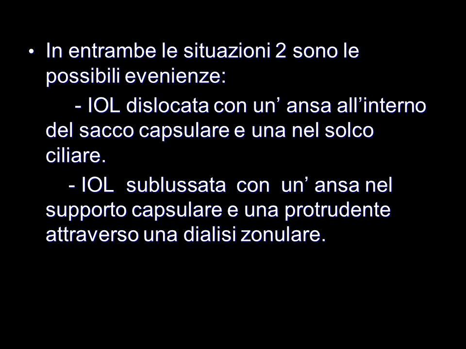 In entrambe le situazioni 2 sono le possibili evenienze: In entrambe le situazioni 2 sono le possibili evenienze: - IOL dislocata con un ansa allinter
