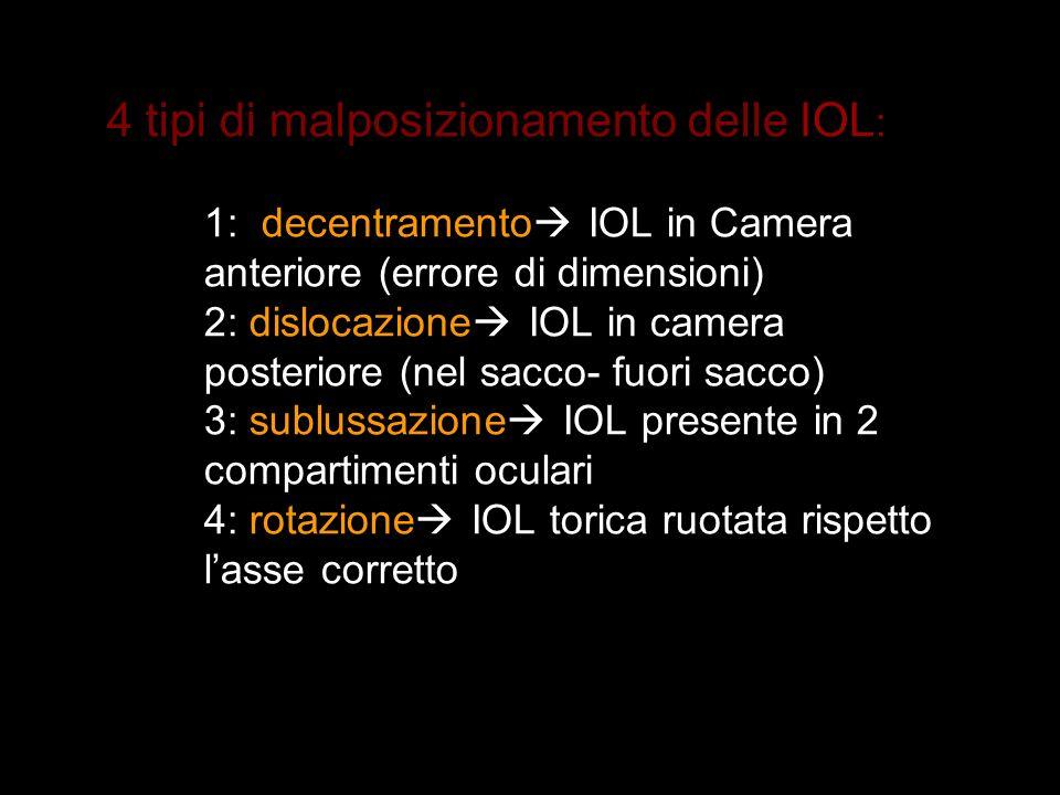 4 tipi di malposizionamento delle IOL : 1: decentramento IOL in Camera anteriore (errore di dimensioni) 2: dislocazione IOL in camera posteriore (nel