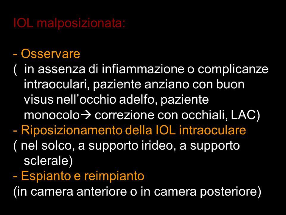 CAUSE DI DECENTRAMENTO DI IOL IN C.A Inadeguata dimensione della IOL Inadeguata dimensione della IOL Mal posizionamento della IOL durante l intervento chirurgico : puo associarsi a infiammazione uveale e sinechie anteriori periferiche (PAS).
