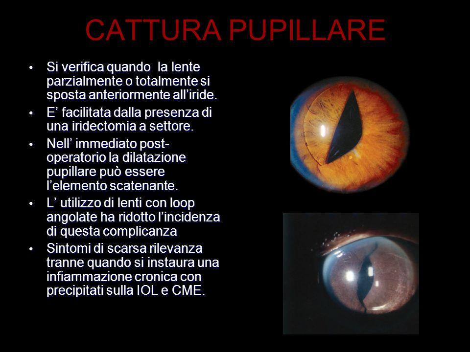 CATTURA PUPILLARE Si verifica quando la lente parzialmente o totalmente si sposta anteriormente alliride. Si verifica quando la lente parzialmente o t
