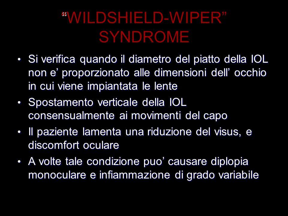 WILDSHIELD-WIPER SYNDROME Si verifica quando il diametro del piatto della IOL non e proporzionato alle dimensioni dell occhio in cui viene impiantata