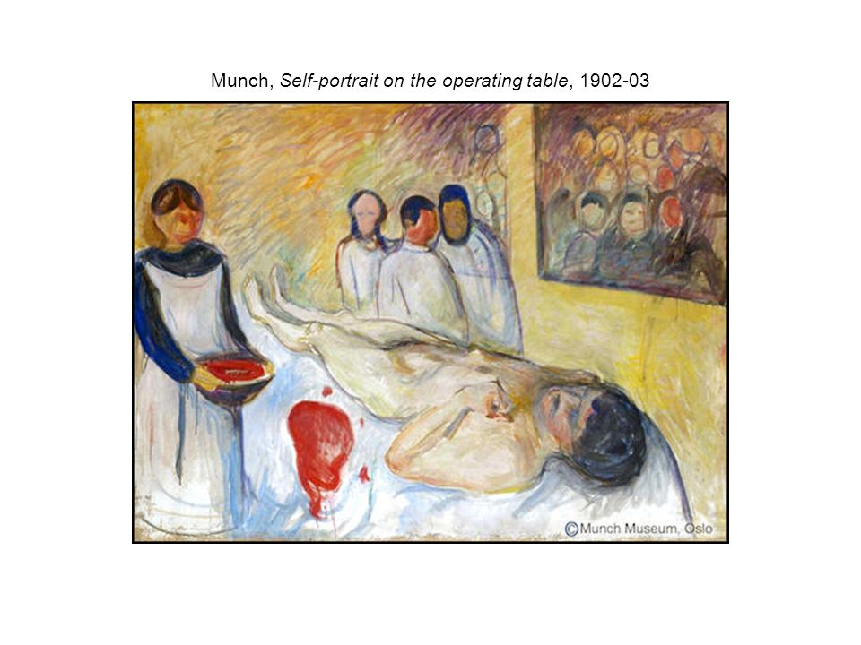 Munch, Self-portrait on the operating table, 1902-03