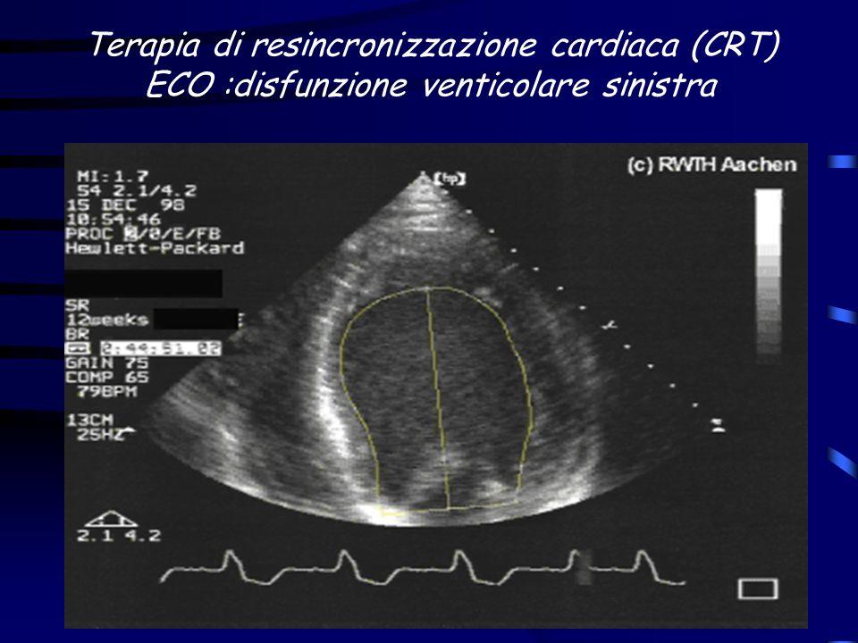 Terapia di resincronizzazione cardiaca (CRT) ECO :disfunzione venticolare sinistra