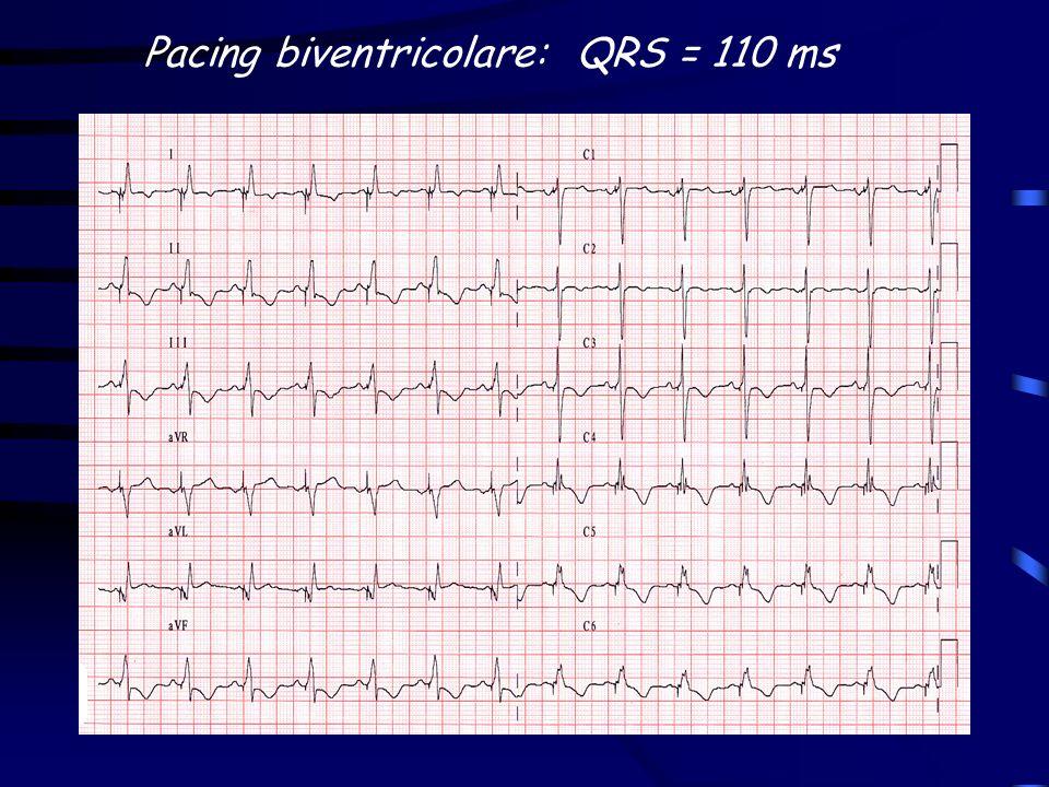 End point primario: pz con e senza cardiopatia ischemica