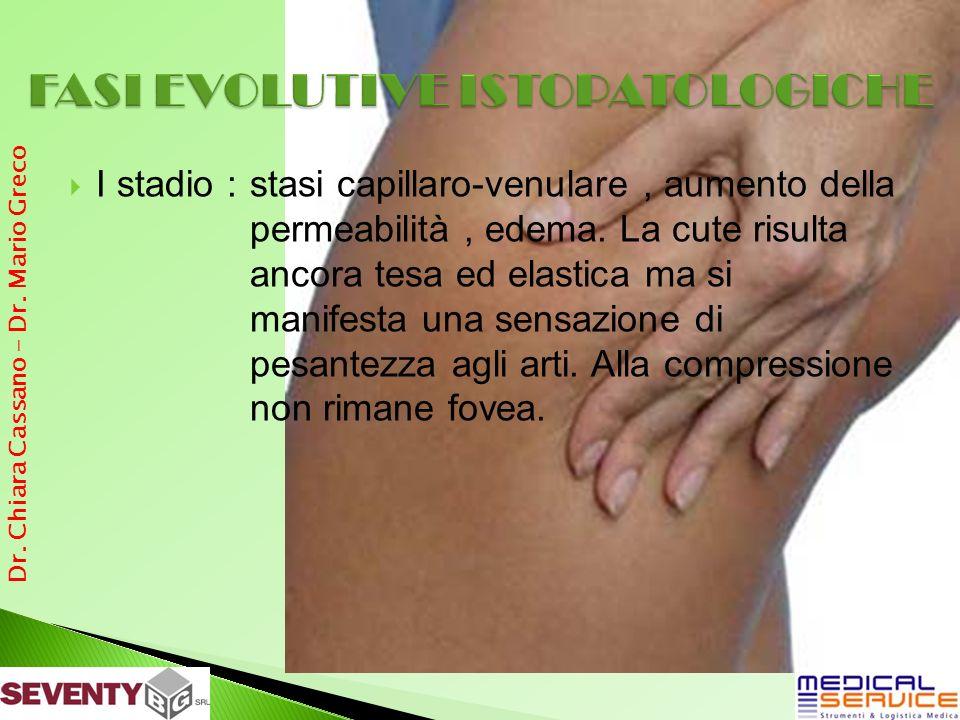 I stadio : stasi capillaro-venulare, aumento della permeabilità, edema.