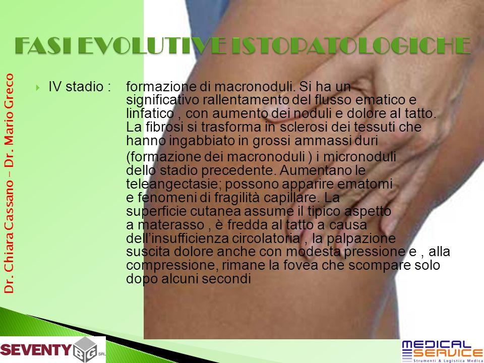 IV stadio : formazione di macronoduli. Si ha un significativo rallentamento del flusso ematico e linfatico, con aumento dei noduli e dolore al tatto.