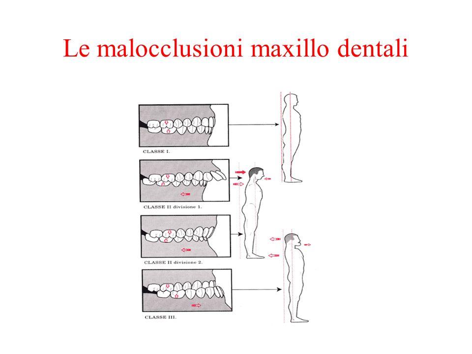 Le malocclusioni maxillo dentali