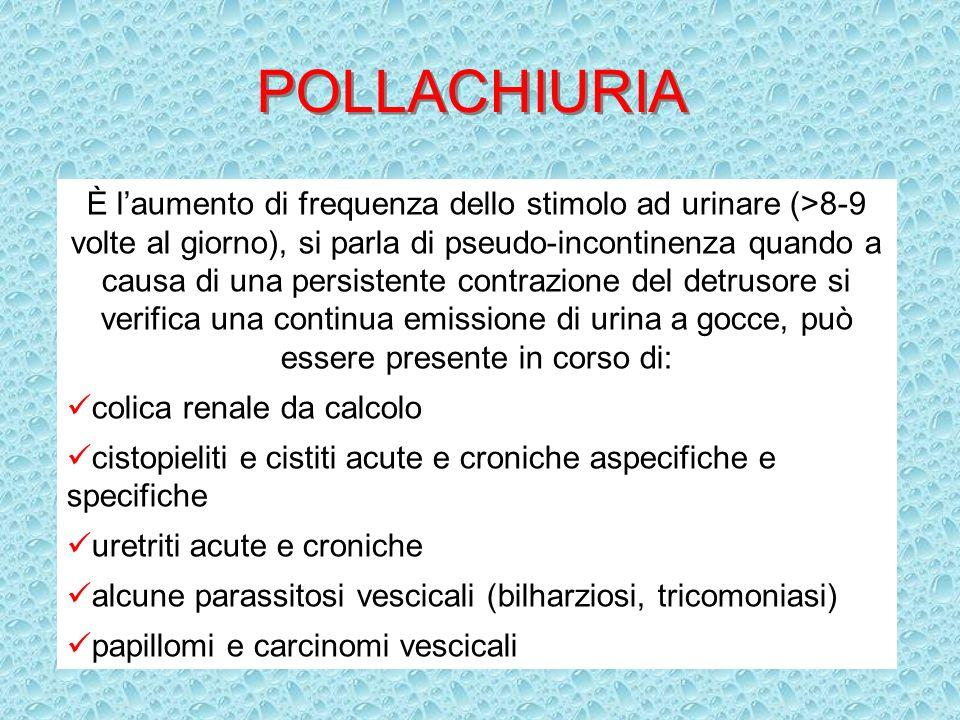 POLLACHIURIA È laumento di frequenza dello stimolo ad urinare (>8-9 volte al giorno), si parla di pseudo-incontinenza quando a causa di una persistent