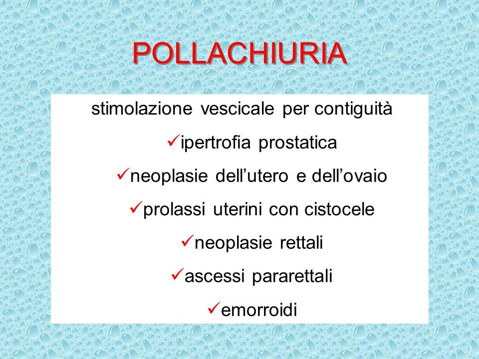 POLLACHIURIA stimolazione vescicale per contiguità ipertrofia prostatica neoplasie dellutero e dellovaio prolassi uterini con cistocele neoplasie rett