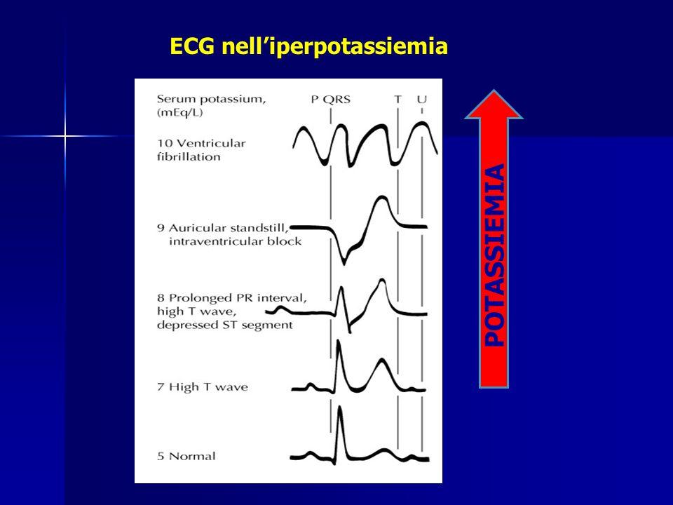 ECG nelliperpotassiemia POTASSIEMIA
