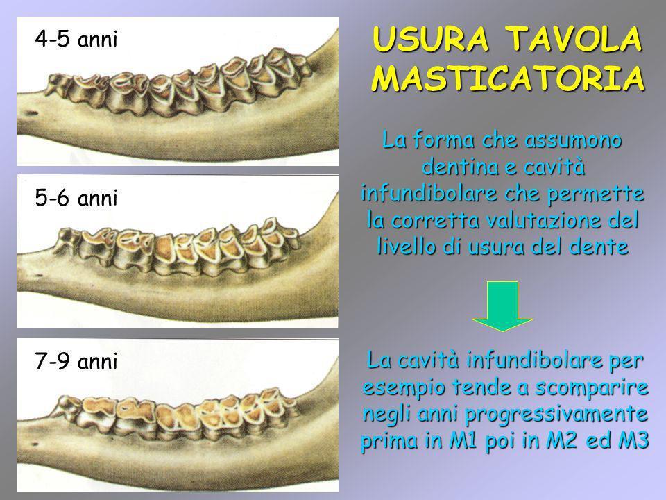 7-9 anni USURA TAVOLA MASTICATORIA 4-5 anni 5-6 anni La forma che assumono dentina e cavità infundibolare che permette la corretta valutazione del liv