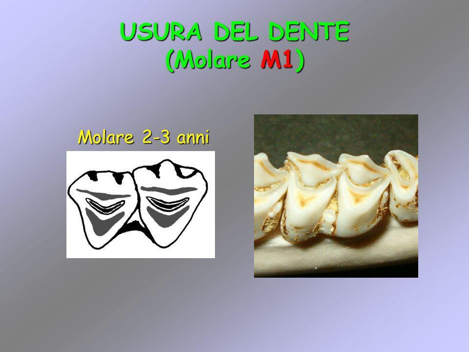 USURA DEL DENTE (Molare M1) Molare 2-3 anni