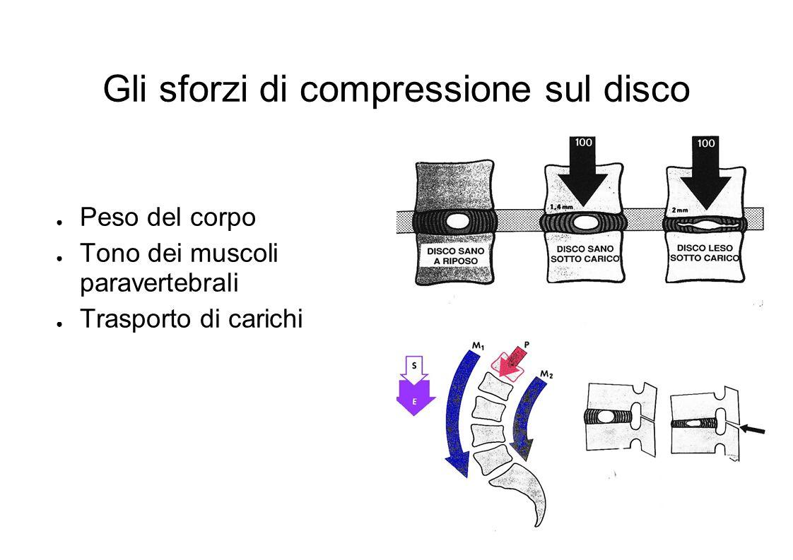 Gli sforzi di compressione sul disco Peso del corpo Tono dei muscoli paravertebrali Trasporto di carichi