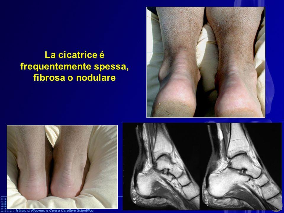 Sutura chirurgica Sutura + rinforzo 2 / Trattamento chirurgico Sutura Rinforzo Gesso 6 settimane di cui 3 in equino Aponevrosi o tendini vicini