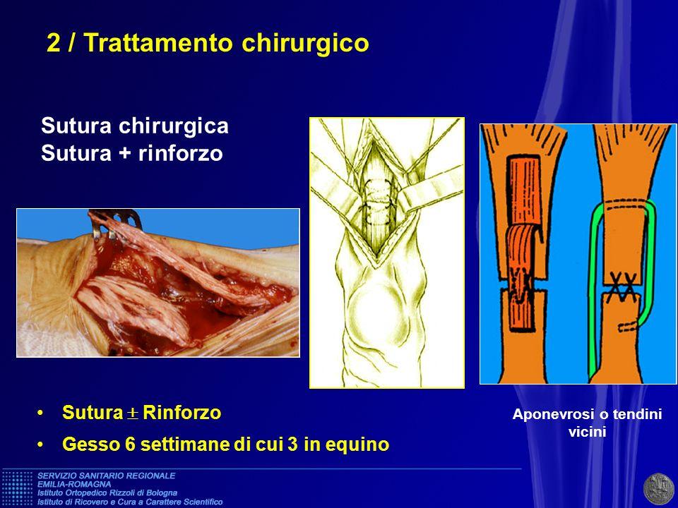 * VANTAGGI : - visione diretta della qualità della sutura - tensione adeguata - scarse rotture iterative ( 2% ) INCONVENIENTI - Rischi cutanei (15%) di cui 2 - 3% gravi 2 / Trattamento chirurgico