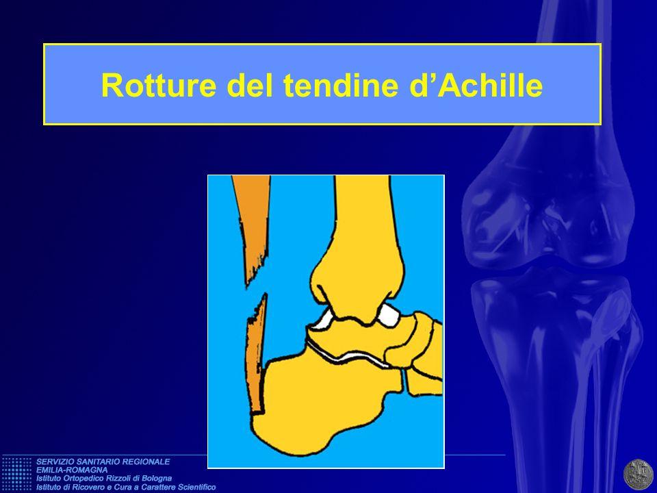 Trauma dello sport, nella maggior parte dei casi Le sede é spesso vicino allinserzione disatale sul calcagno (4 - 6 cm) Tendine,in sede di rottura, spesso sfilacciato