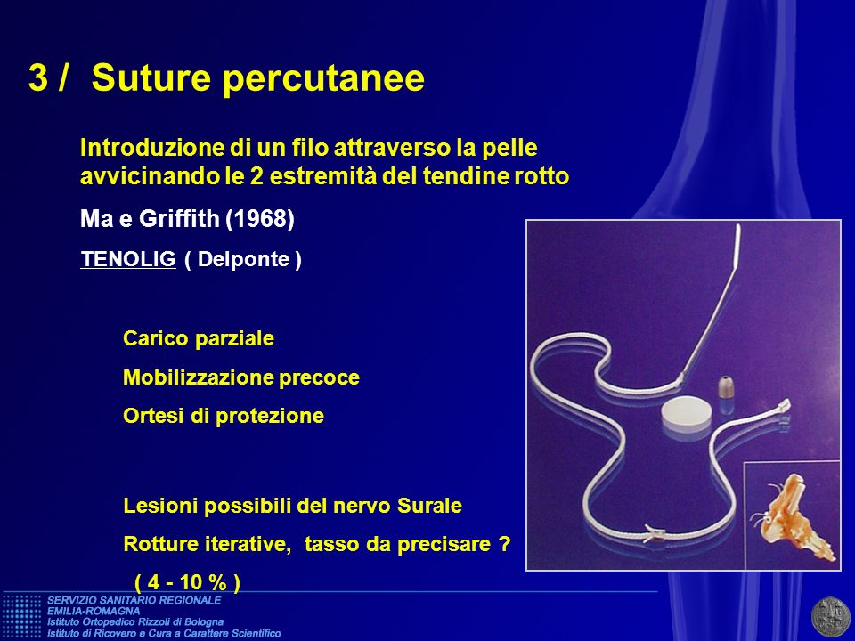 3 / Suture percutanee Introduzione di un filo attraverso la pelle avvicinando le 2 estremità del tendine rotto Ma e Griffith (1968) TENOLIG ( Delponte