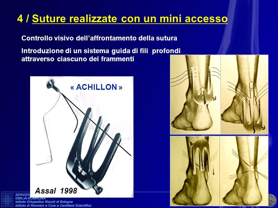 4 / Suture realizzate con un mini accesso Controllo visivo dellaffrontamento della sutura Introduzione di un sistema guida di fili profondi attraverso