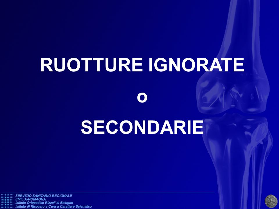 RUOTTURE IGNORATE o SECONDARIE