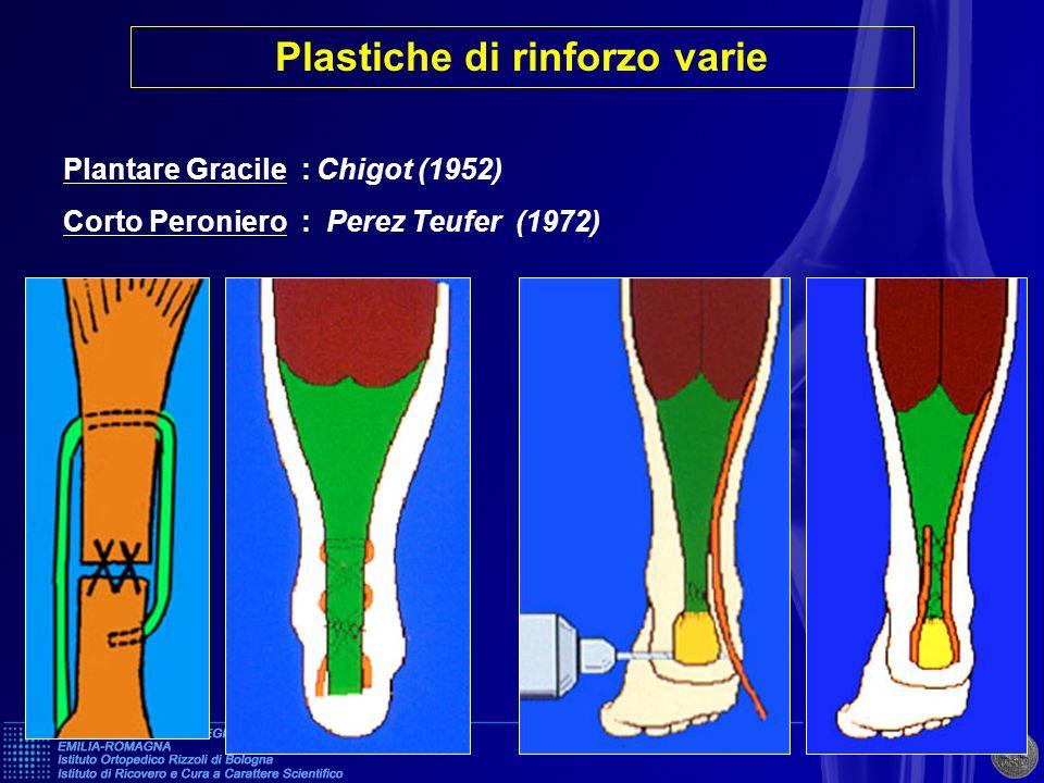 Plantare Gracile : Chigot (1952) Corto Peroniero : Perez Teufer (1972) CHIGOTPEREZ TEUFER Plastiche di rinforzo varie