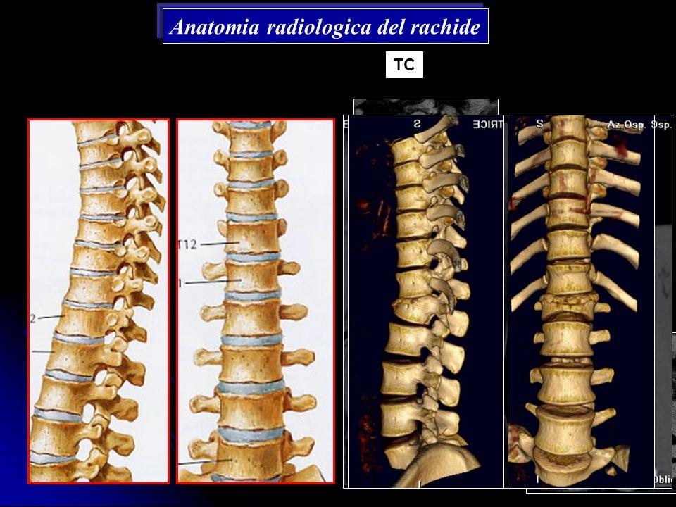 Anatomia radiologica del rachide TC
