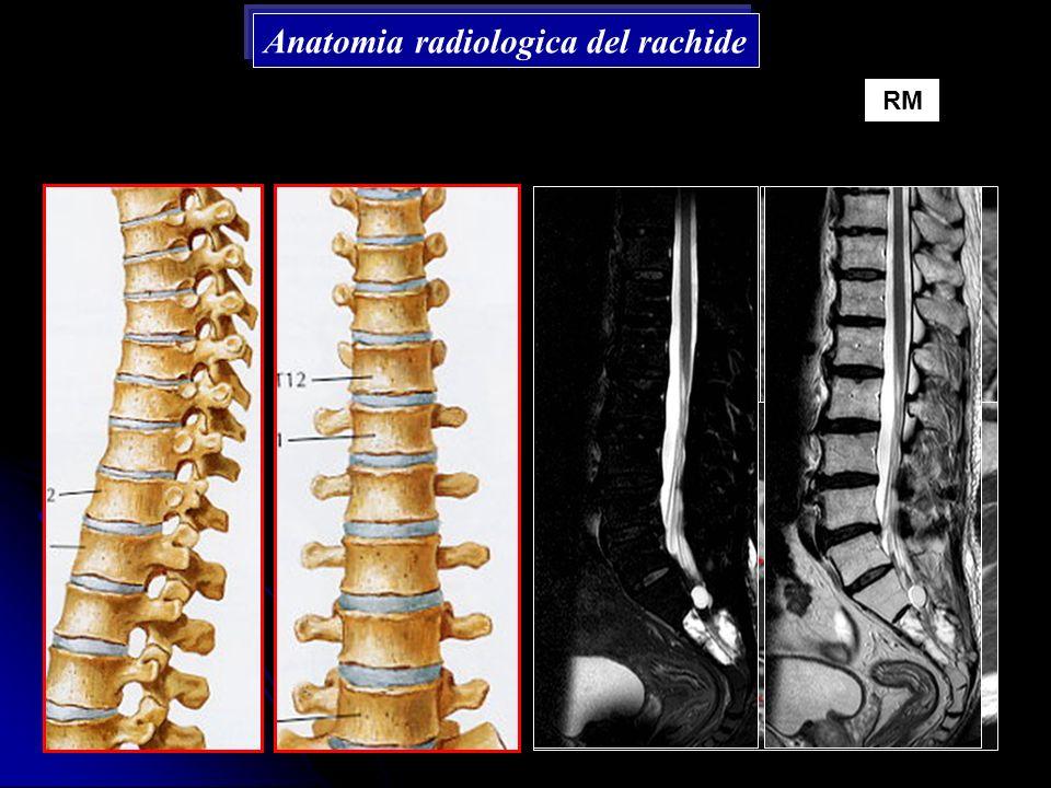 Anatomia radiologica del rachide RM