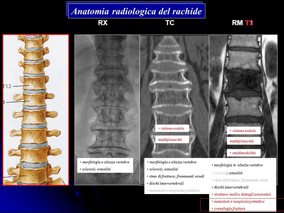 Anatomia radiologica del rachide RXTCRM T1RM T2 morfologia e altezza vertebre sclerosi; osteolisi morfologia e altezza vertebre sclerosi; osteolisi ri