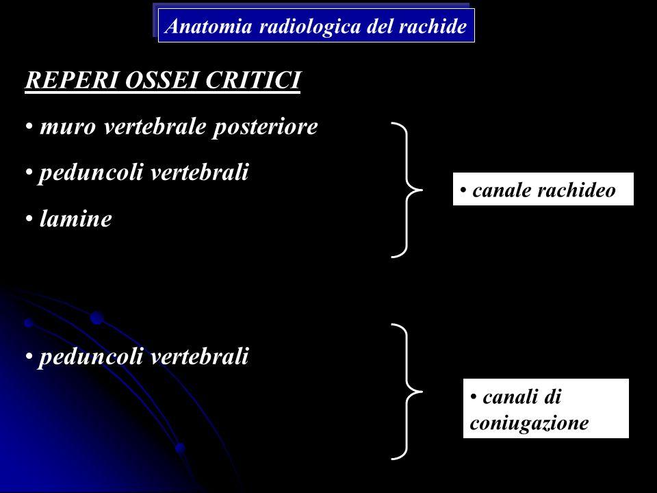 Anatomia radiologica del rachide REPERI OSSEI CRITICI muro vertebrale posteriore peduncoli vertebrali lamine peduncoli vertebrali canale rachideo cana