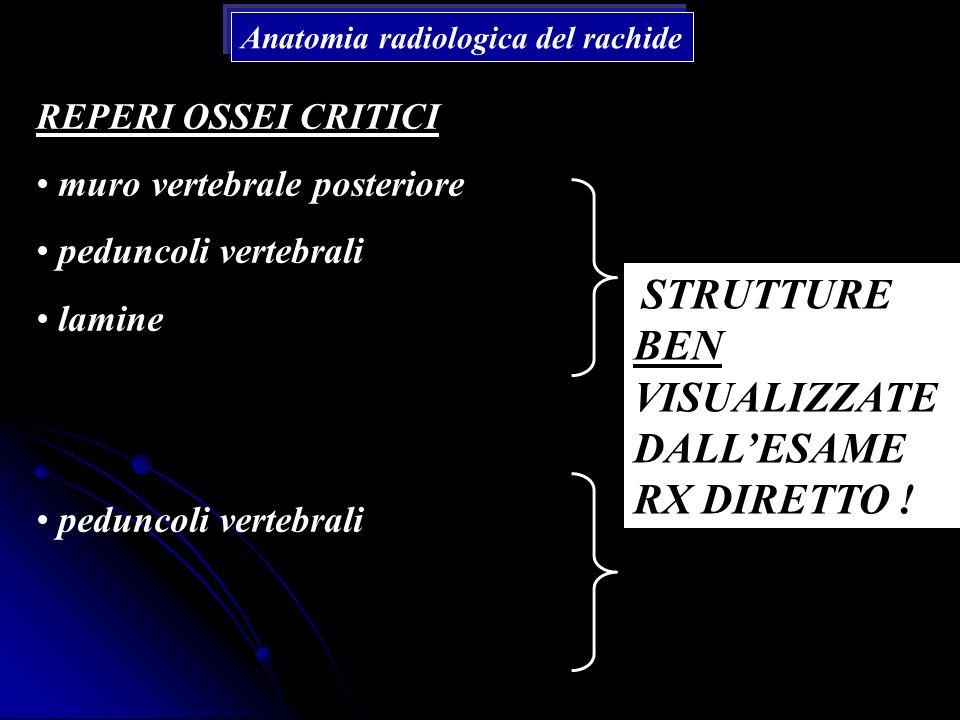Anatomia radiologica del rachide REPERI OSSEI CRITICI muro vertebrale posteriore peduncoli vertebrali lamine peduncoli vertebrali STRUTTURE BEN VISUAL