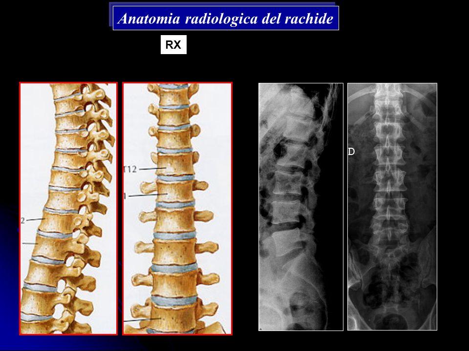 Anatomia radiologica del rachide RX