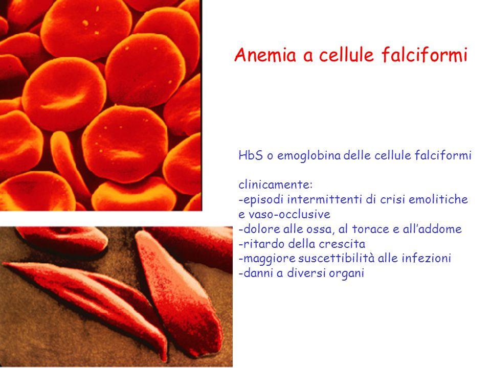 Anemia a cellule falciformi HbS o emoglobina delle cellule falciformi clinicamente: -episodi intermittenti di crisi emolitiche e vaso-occlusive -dolor