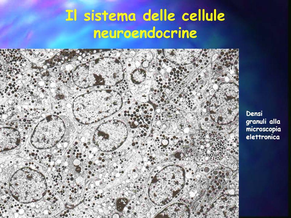 Il sistema delle cellule neuroendocrine e relativi tumori Con formazione di ghiandole AdenoipofisiAdenoma ParatiroidiAdenoma/Carcinoma ParagangliParaganglioma Midollare del surreneFeocromocitoma Disseminato Tratto gastrointestinaleNET/Carcinoma Pancreas endocrinoNET/Carcinoma Tratto biliareNET/Carcinoma Tratto respiratorioCarcinoide/Carcinoma NE TimoCarcinoide Cellule C tiroideeCarcinoma midollare della tiroide Tratto urogenitaleCarcinoide CuteCarcinoma a cellule di Merkel G Kloppel.