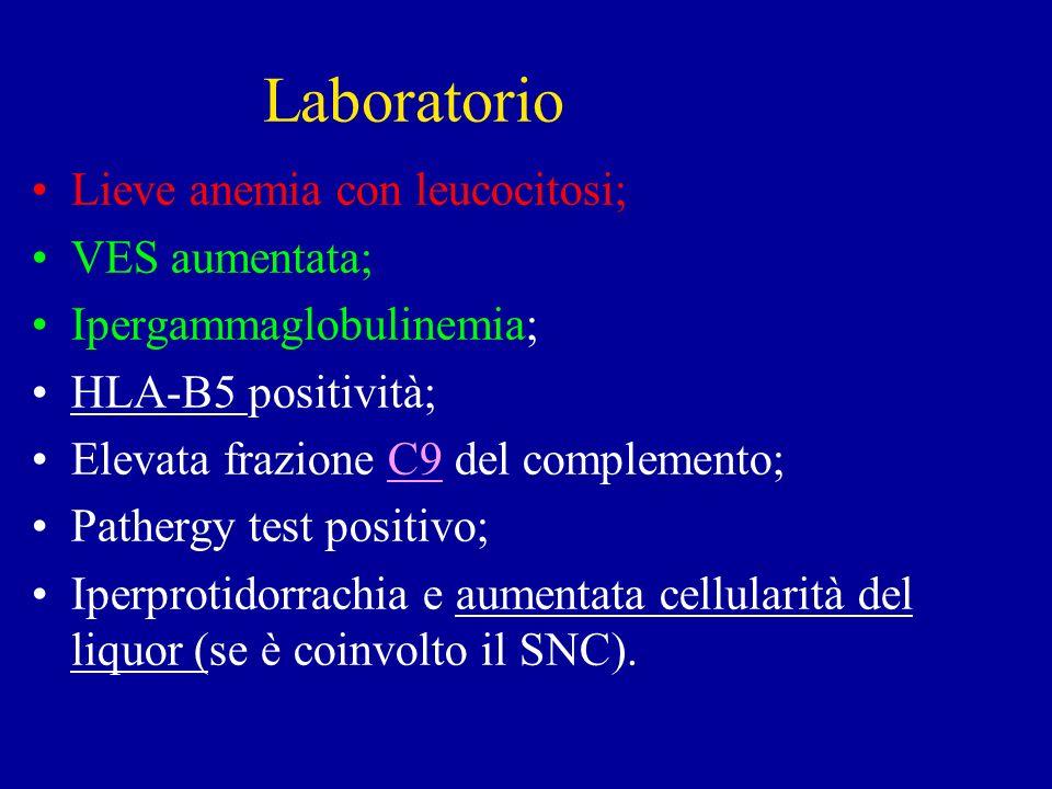 Laboratorio Lieve anemia con leucocitosi; VES aumentata; Ipergammaglobulinemia; HLA-B5 positività; Elevata frazione C9 del complemento; Pathergy test